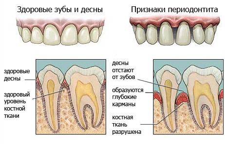 удаление зуба запах изо рта